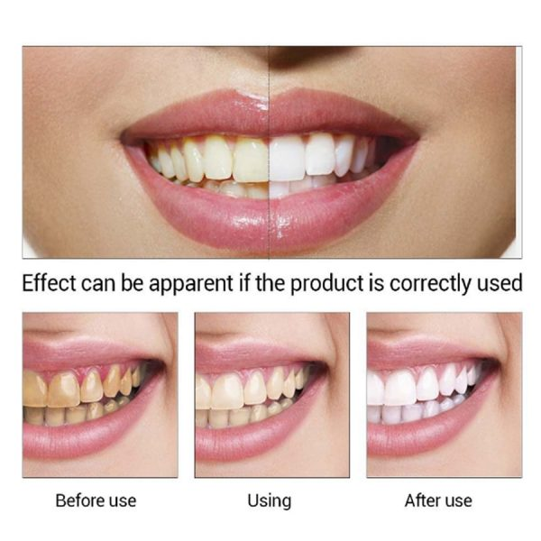 EFERO 2pcs/lot Tooth Cleaner for Teeth Tooth Whitening Kit